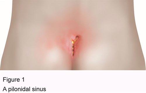Κυρίτσης - Γενικός Χειρούργος, κύστη κοκκυγός